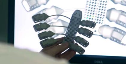 Impresión 3D: Primera caja torácica impresa en 3D es trasplantada a español