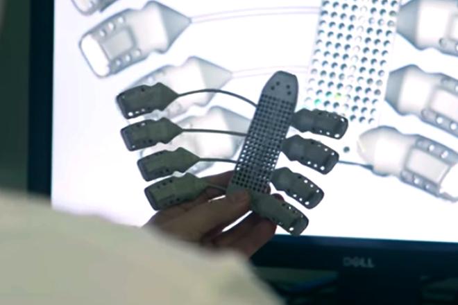 Impresión 3D y salud: Trasplantan primera caja torácica impresa en 3D