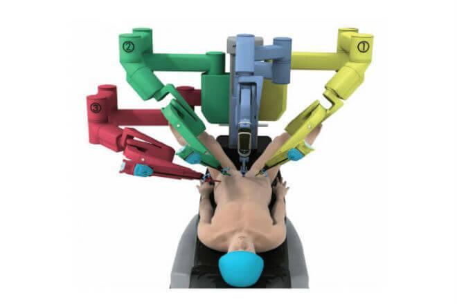 Cirugía Robótica.