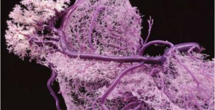 Es posible producir vasos sanguíneos con bioimpresión 3D